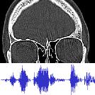 ENS met audio   Neus.nu   Platform van KNO-artsen